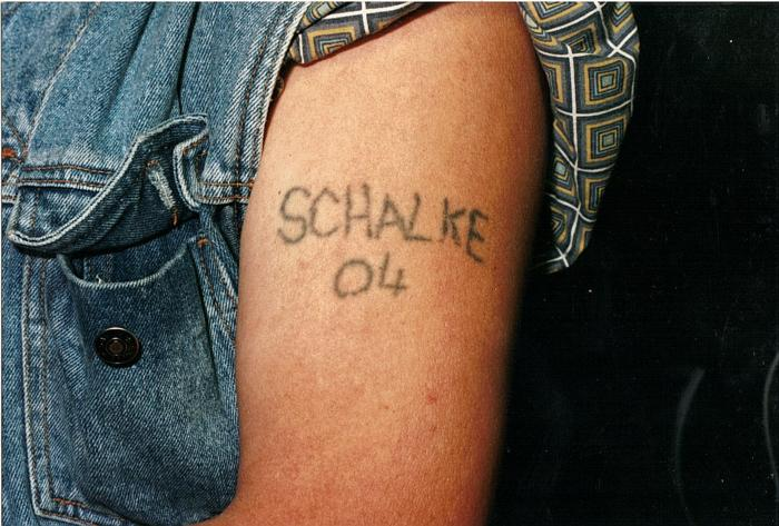 Removal Schalke-Tattoo 01